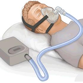 呼吸科睡眠方案