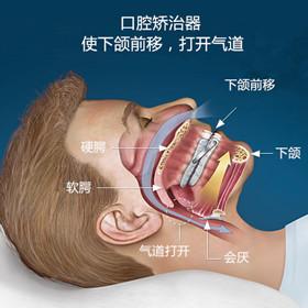 口腔科睡眠方案
