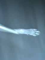 骨科X光诊断5